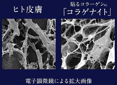 コラゲナイトのヒト皮膚コラーゲン組織の画像